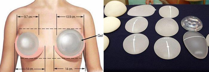 Как происходит восстановление после маммопластики и что нужно знать о данном периоде