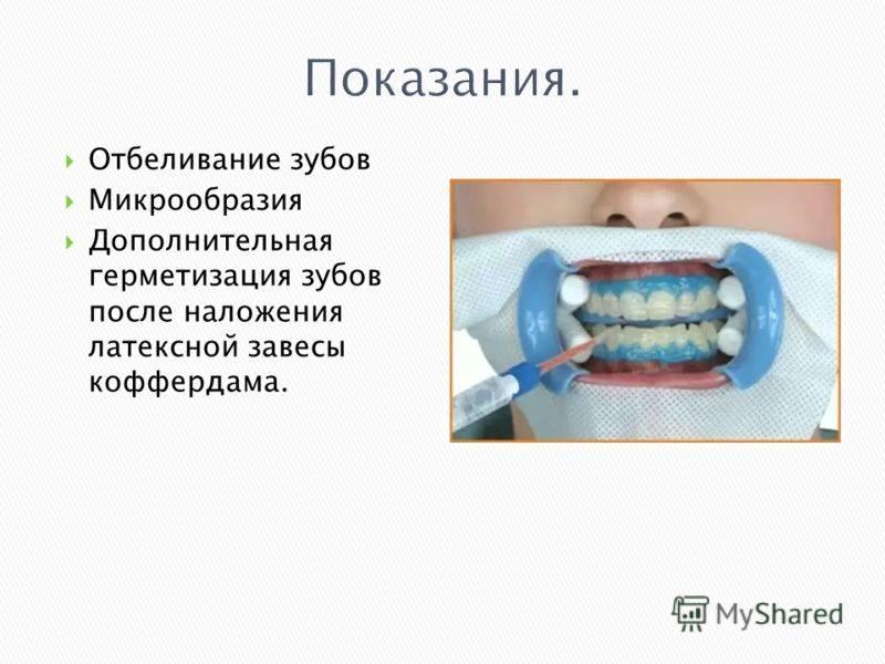Что такое коффердам (раббердам, оптидам) в стоматологии: цели, показания и противопоказания к использованию