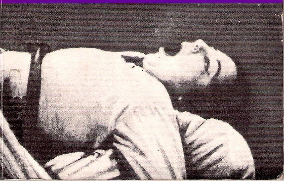 Бешенство матки у женщин симптомы и осложнения