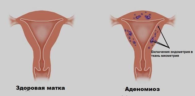 Возможна ли беременность при эндометриозе и как она протекает?