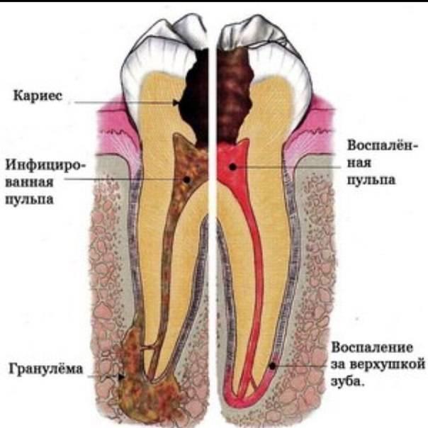 Причины и технология лечения кариеса дентина: как вовремя выявить недуг