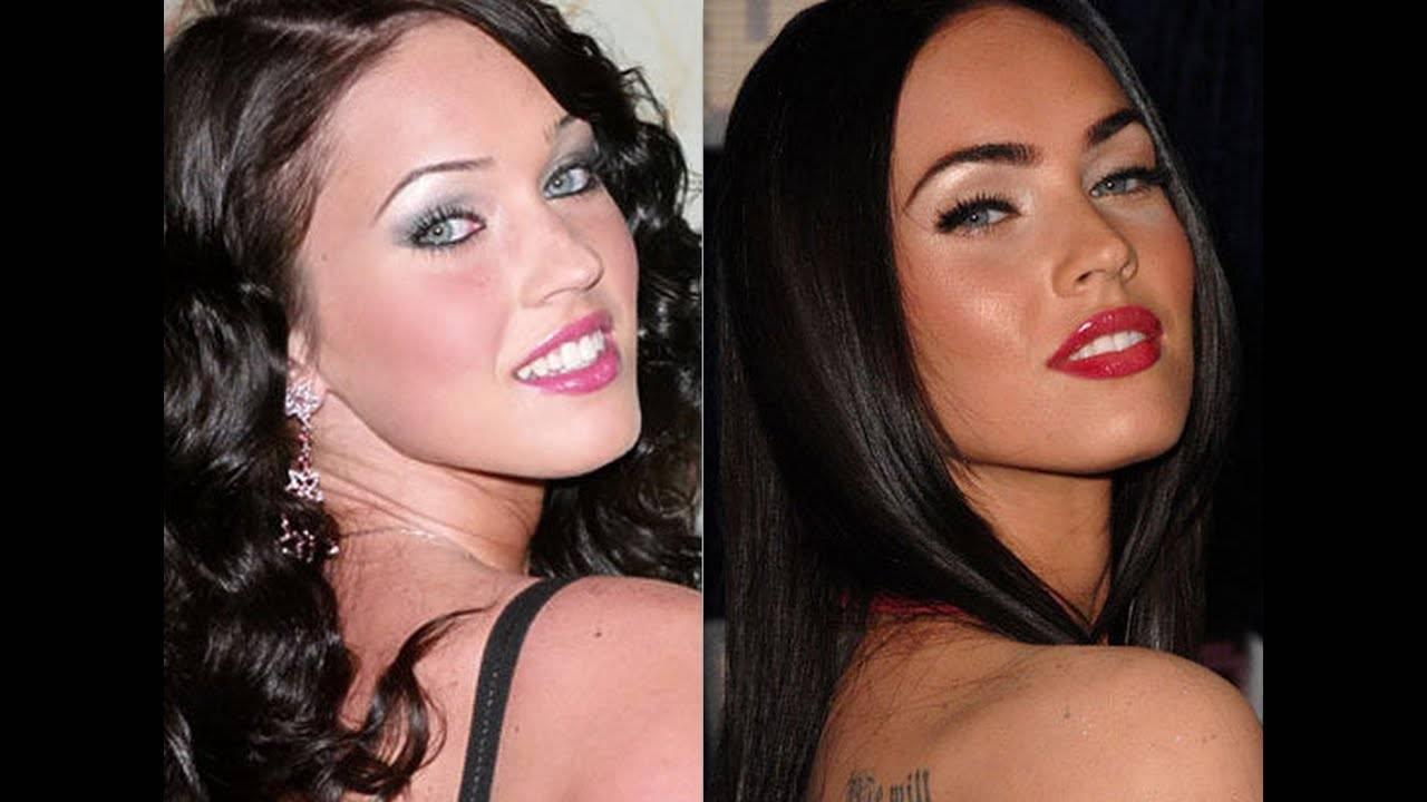 Меган фокс — фото до и после пластических операций