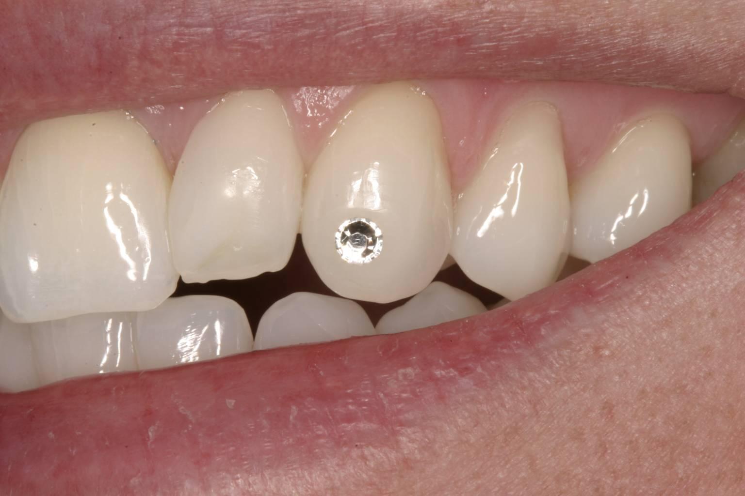 Стразы на зубы: вся правда о модной тенденции