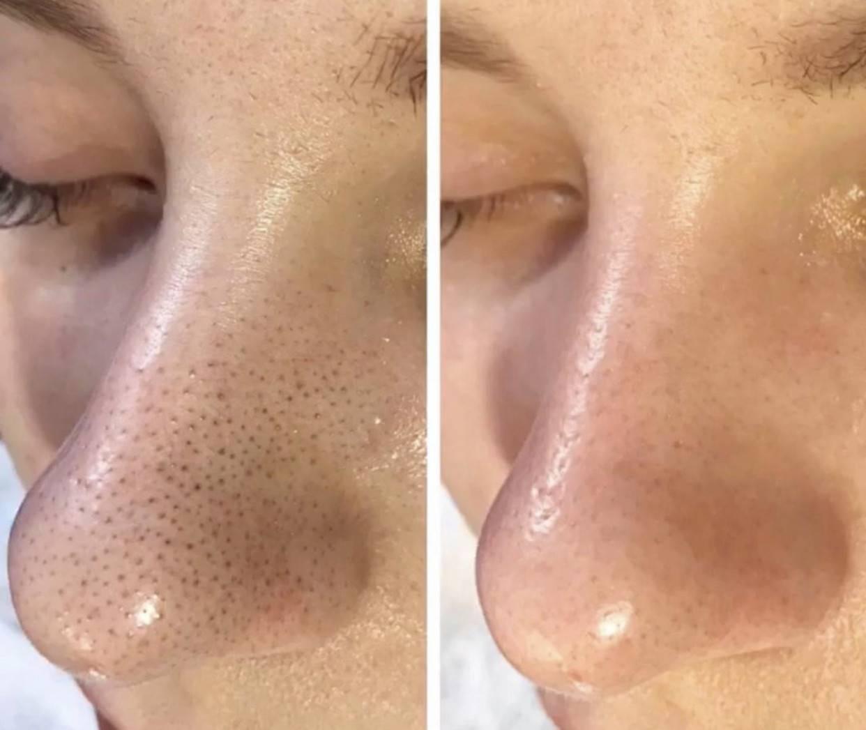 Как очистить поры на лице – этапы проведения процедуры