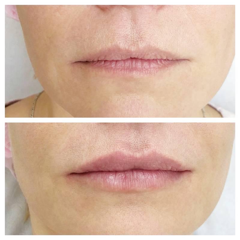 Как поднять опущенные уголки губ: домашние и косметологические средства, упражнения, массаж, макияж, филлеры, советы, отзывы