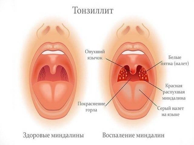 Набухшие миндалины после ангины