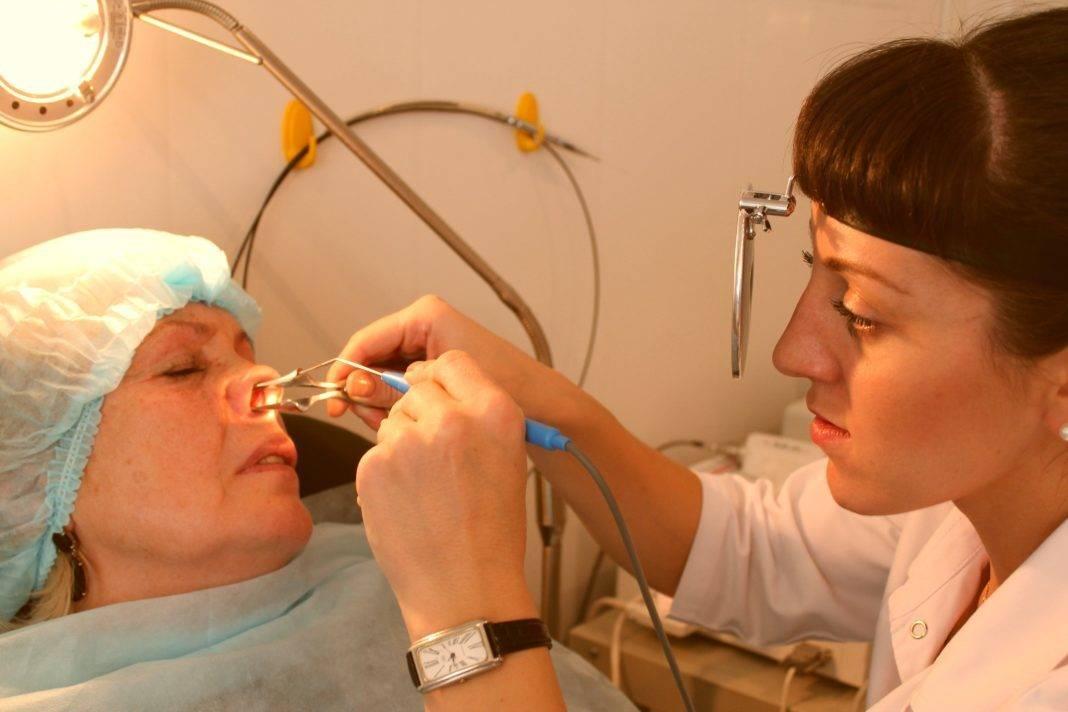 Прокол носа: отзывы и описание процедуры. пирсинг носа: как проводится процедура, возможные осложнения, правильный уход