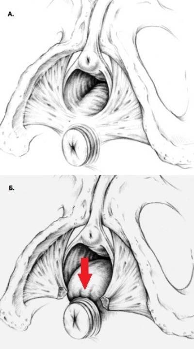 Разрывы при родах