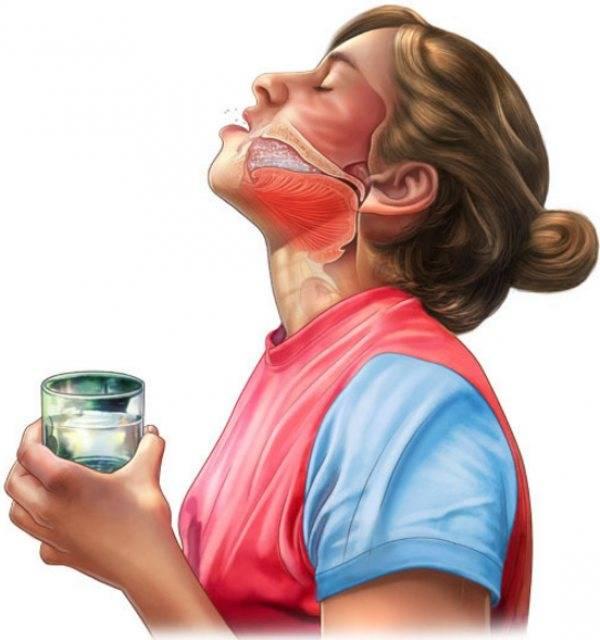 Стоматит горла у взрослых лечение