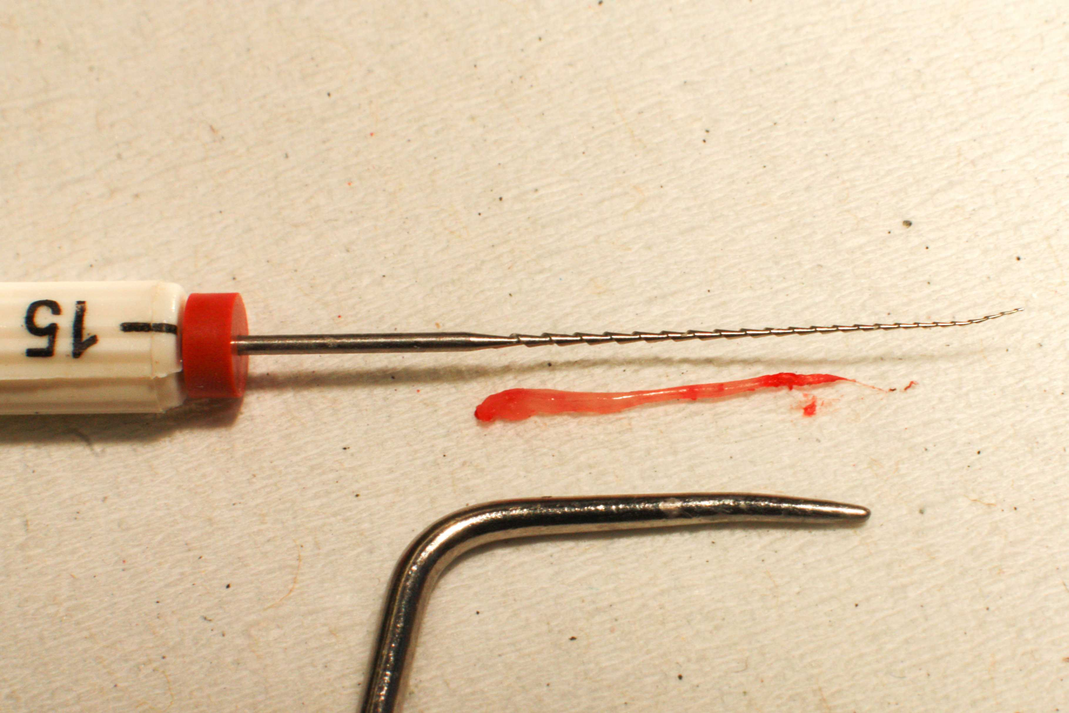 Как убить нерв в зубе — как удалить зубной нерв дома