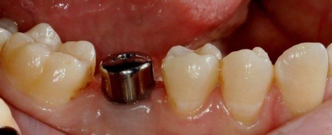 После удаления зуба в лунку положили лекарство с йодом