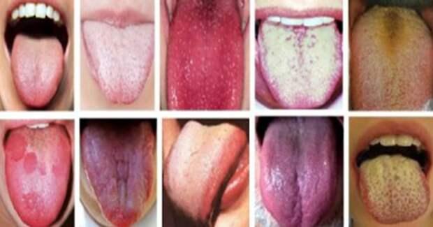 Покажи язык - и я скажу чем ты болен!