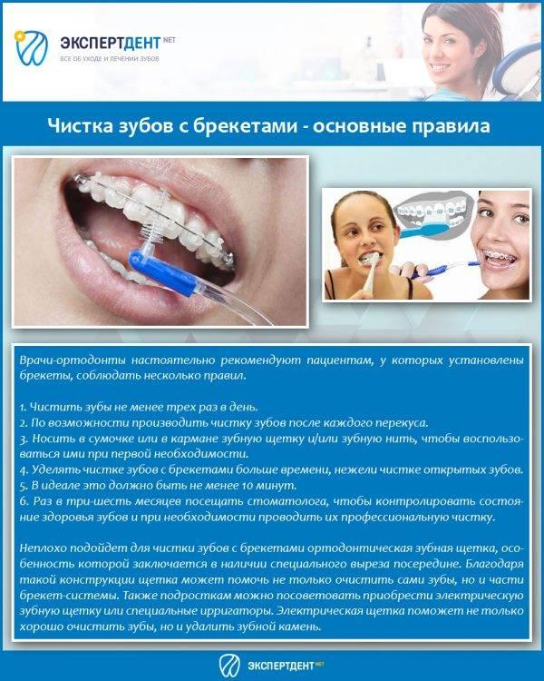 Профессиональная чистка зубов: виды, стоимость, противопоказания и отзывы