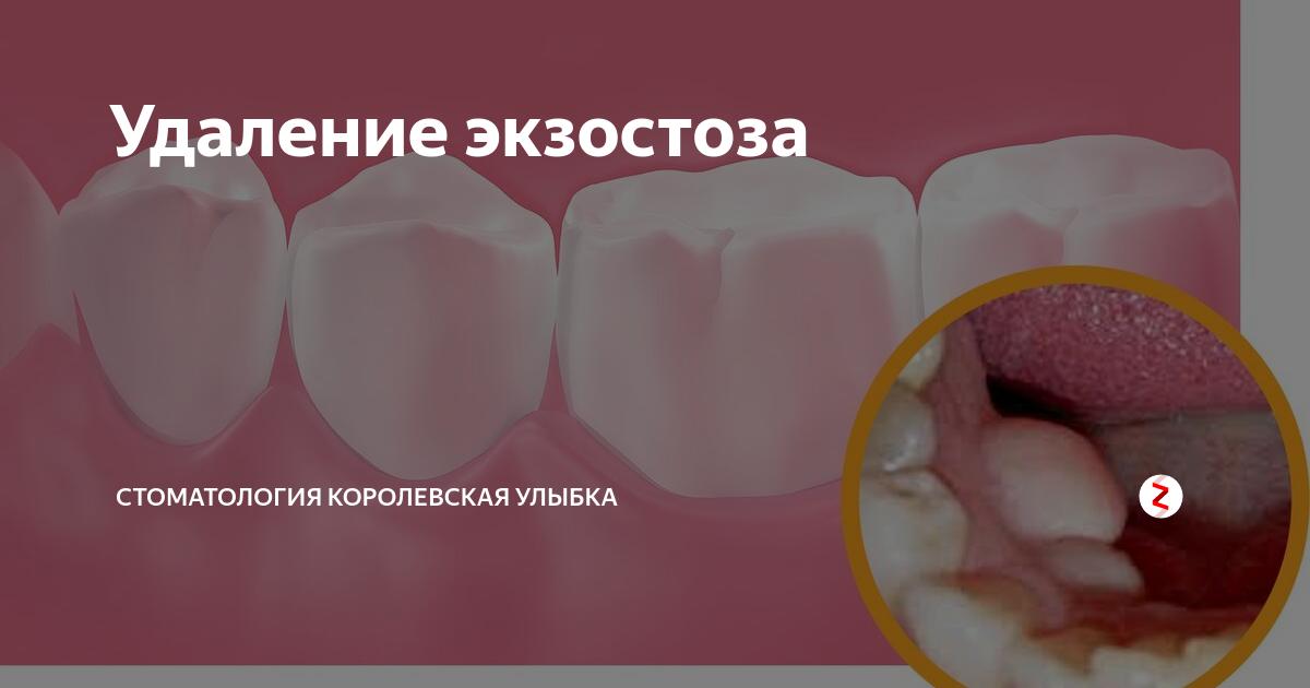Удаление экзостоза зуба или челюсти