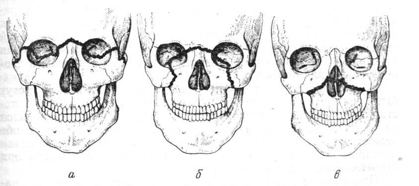 Особенности перелома верхней челюсти