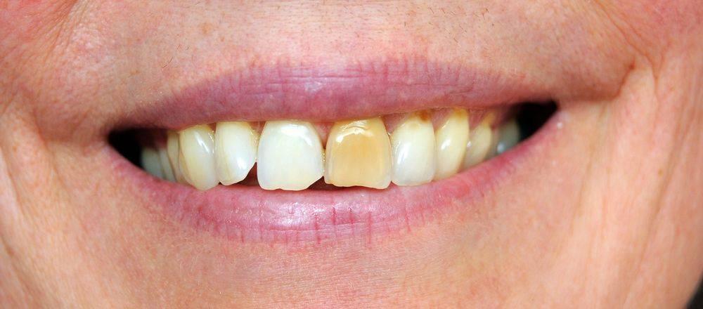 Коричневый, красный, желтый или коричневый язык после антибиотиков