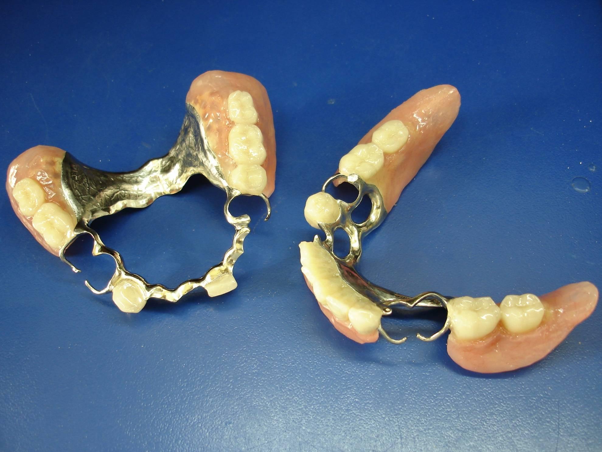 Виды и применение кламмеров системы нея в стоматологической ортопедии