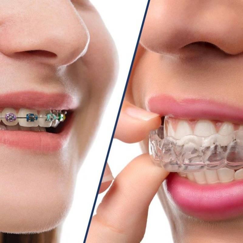 Можно ли ставить брекеты на одну челюсть?