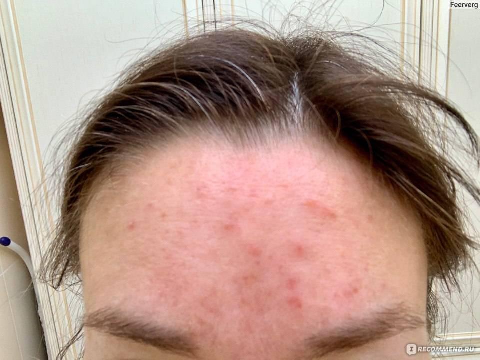 Какое выбрать средство от вросших волос: 5 кремов после эпиляции