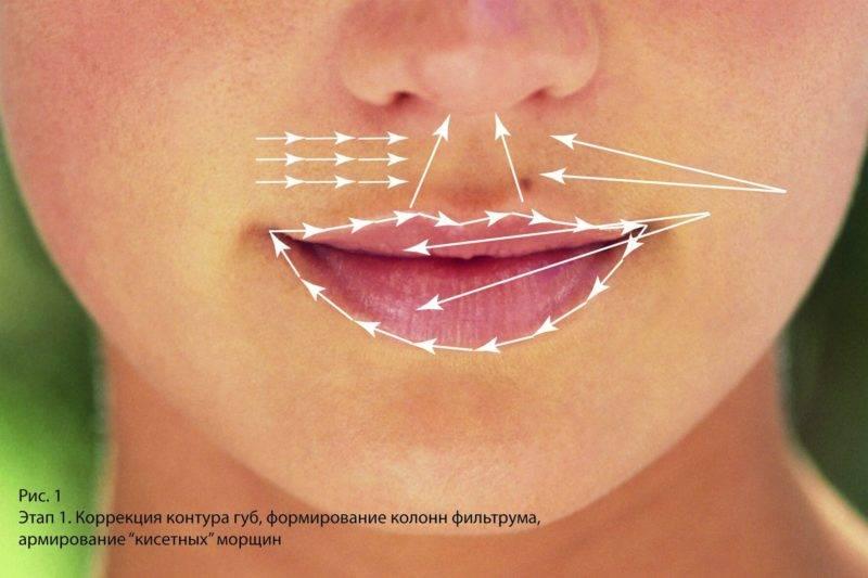 Какой результат можно получить от уколов ботокса в губы