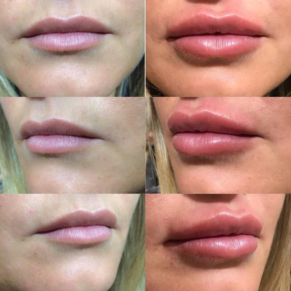 Как увеличить губы гиалуроновой кислотой, ботоксом, силиконом, липофилинг, хейлопластика. фото, цены, отзывы
