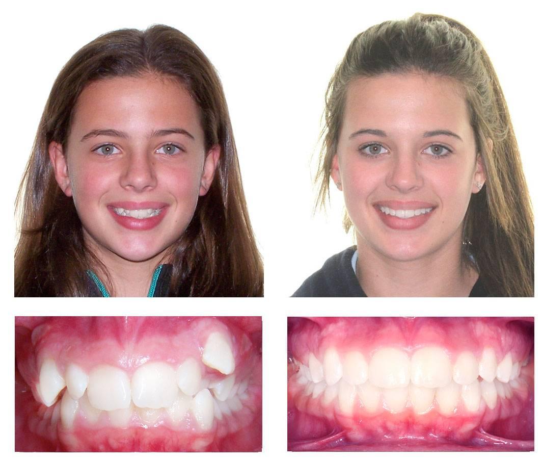 Можно ли исправить кривые зубы без брекетов и как это сделать?