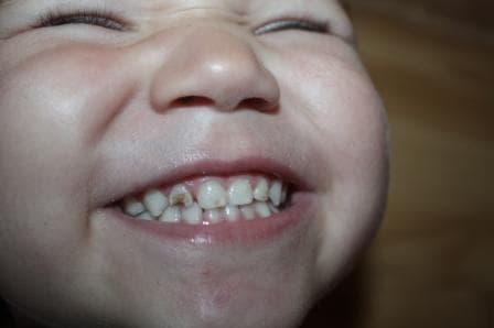 Почему крошатся зубы?