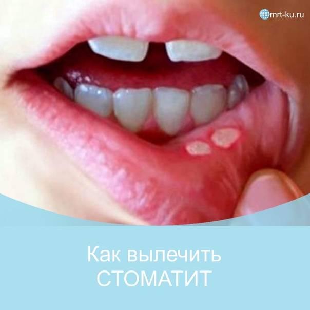 Во рту на щеке язвочка чем лечить – профимед