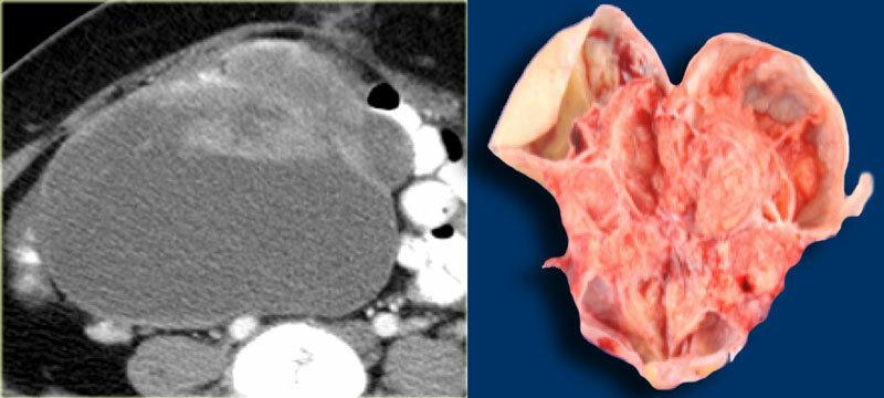 Риск возникновения серозной кисты яичника