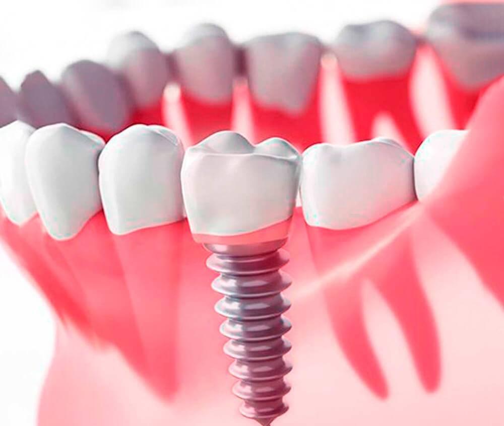 Пластика или наращивание десны при имплантации: что это такое, показания, виды операций