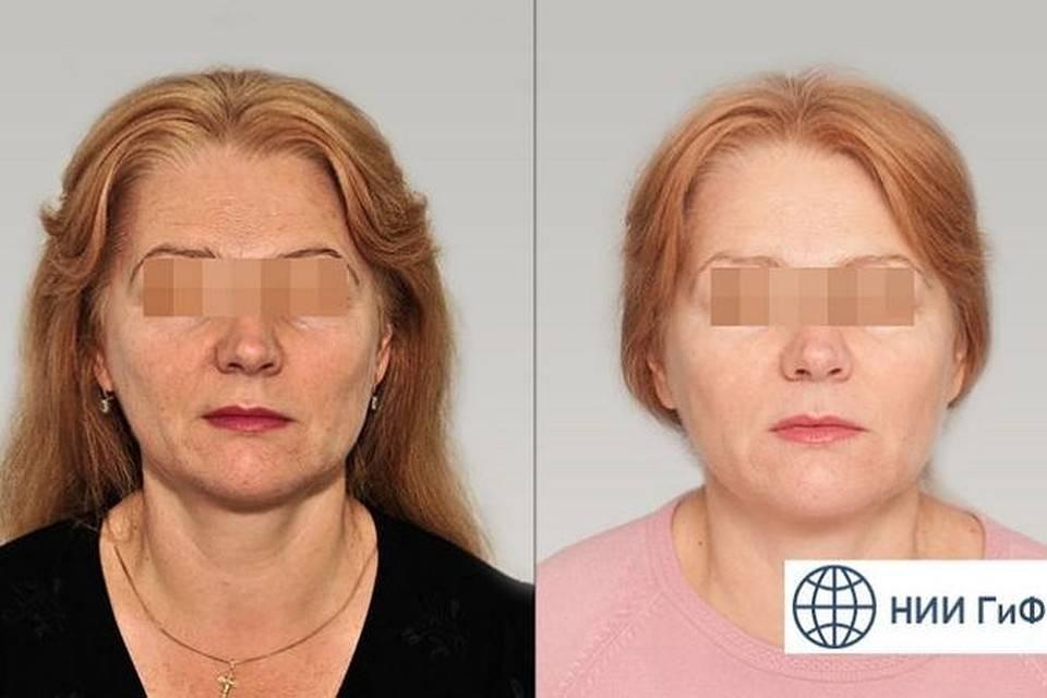Препараты гиалуаль для редермализации кожи — эффективность и мнение косметологов