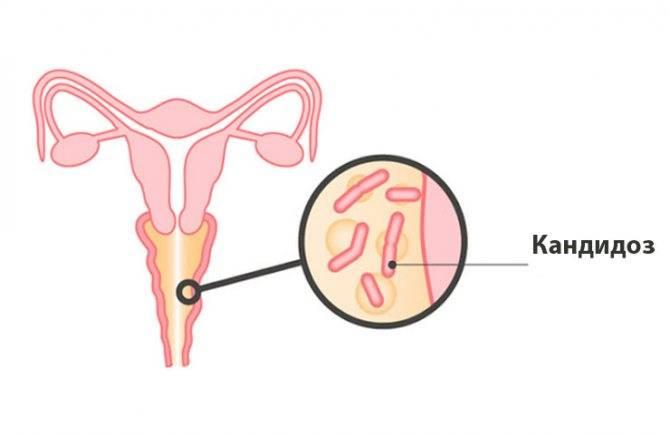 Рекомендации профилактики кандидоза у женщин