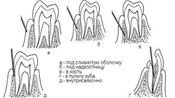 Сколько отходит заморозка после удаления и лечения зуба?