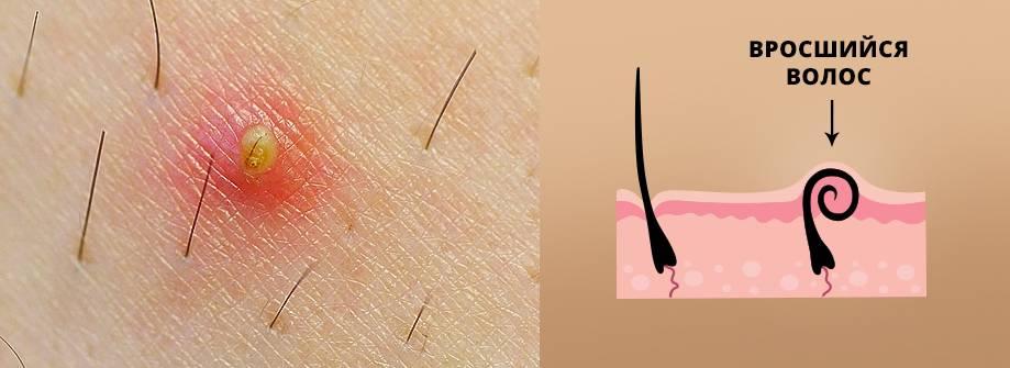 Почему волосы врастают в кожу после бритья, и как от них избавиться