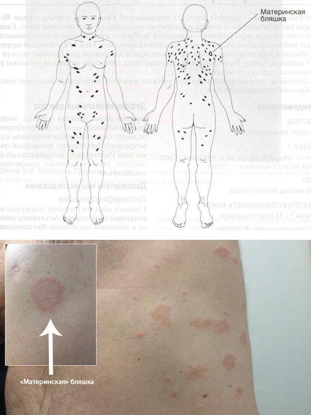 Симптомы и лечение лишая розового