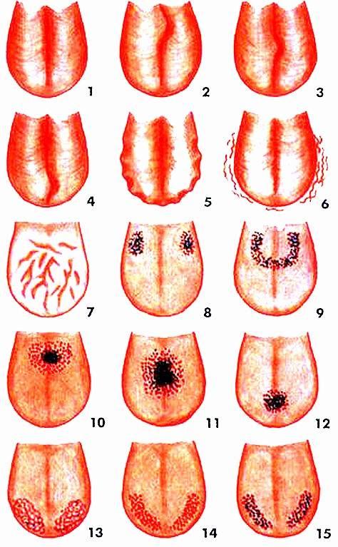 Диагностика по зонам языка фото и описание: как определить болезнь и узнать, какой орган болит у человека?