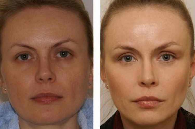 миостимуляция отзывы фото до и после лицо некоторые весёлые