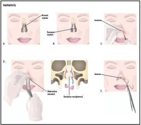 Лазерное исправление носовой перегородки – операция на нос