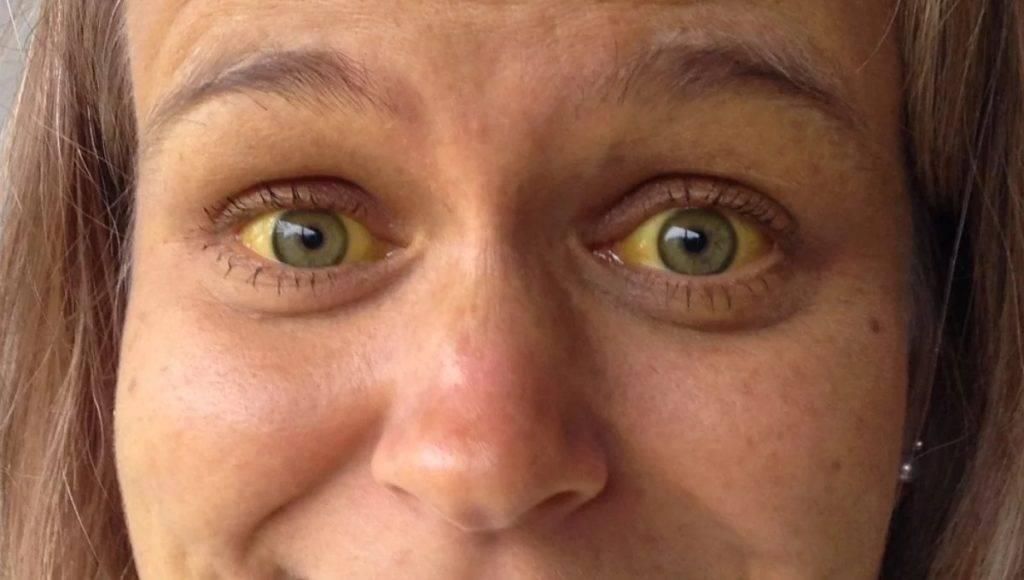 Что влияет на цвет лица и как его можно улучшить