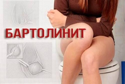 Лечим воспаление бартолиновой железы дома