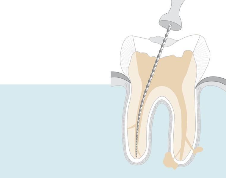 Сколько каналов в зубах таблица