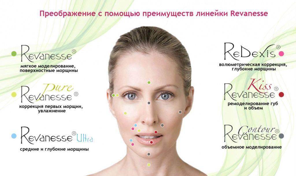 Препараты реванесс для биоревитализации — почему косметологи считают их идеалом