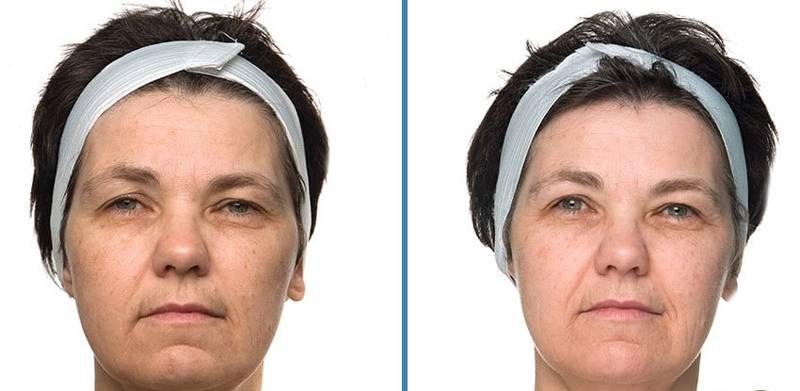Процедура микротоки для лица: что это такое и где лучше ее делать, дома или в салоне?