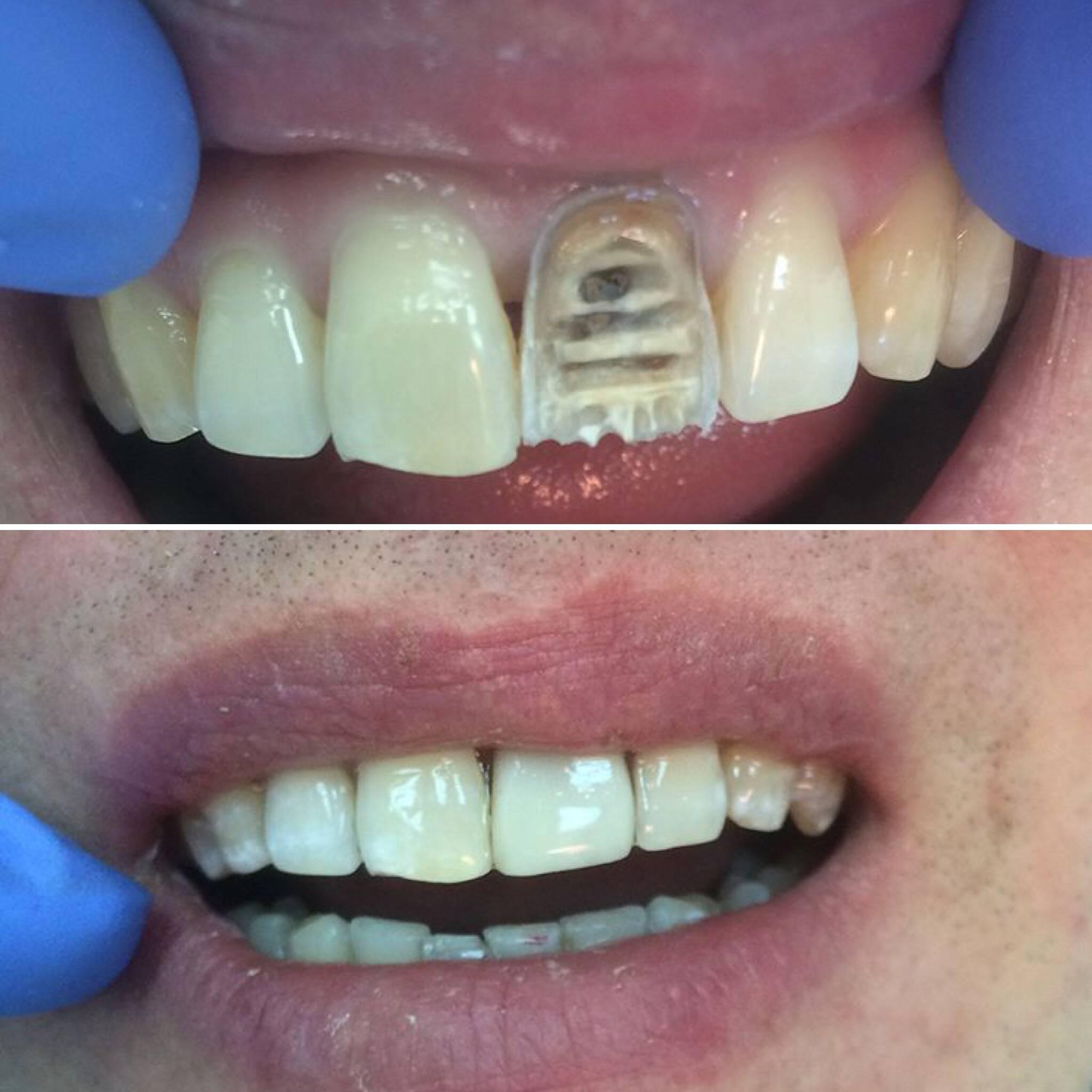 Как ставят пломбы на зубы и сколько нельзя есть после пломбирования