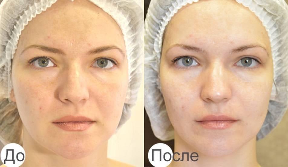 Омоложение кожи при помощи безинъекционной карбокситерапии
