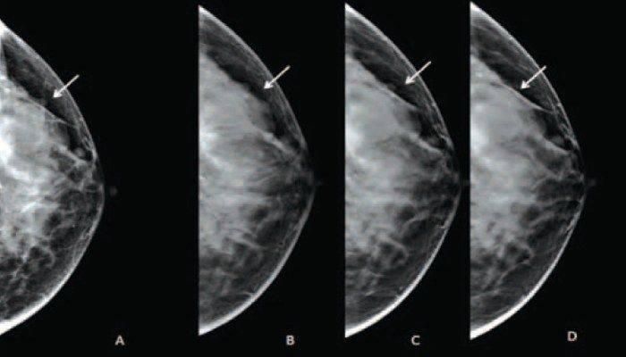 Биопсия молочной железы: виды, показания, правила проведения