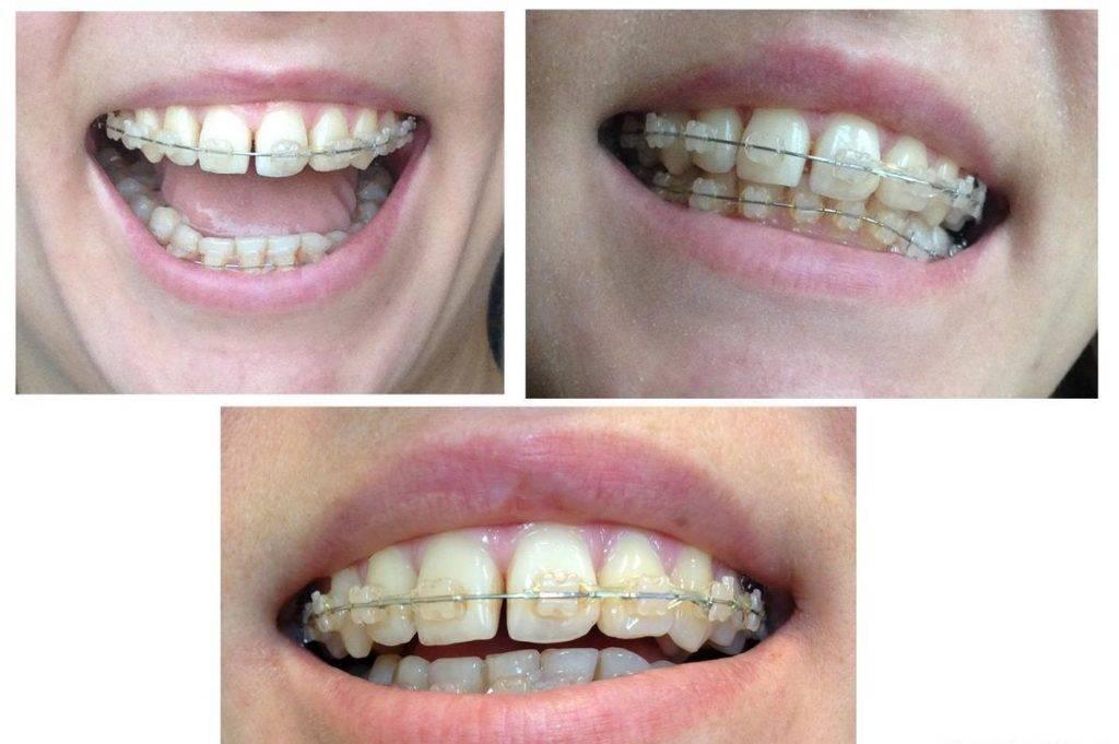 Как снимают брекеты с зубов?