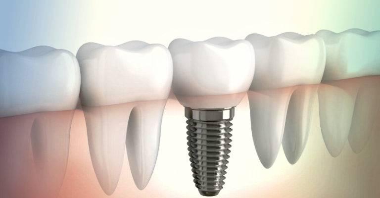 Сколько обычно служит имплант зуба и как скоро может потребоваться его замена