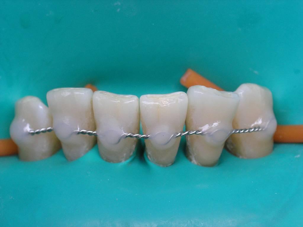 Показания к шинированию зубов: виды, фото до и после
