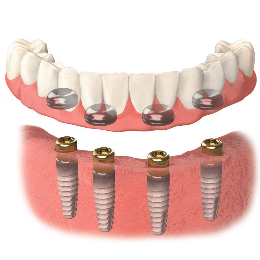 Балочный протез зубов на имплантахчто нужно знать перед установкой балочного протеза?